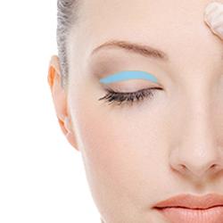 眼瞼下垂手術の料金
