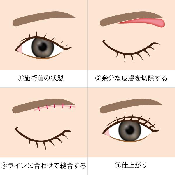 眉毛下切開の施術方法