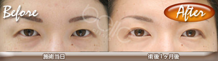 eye-before-after02