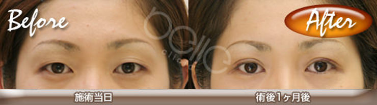 eye-hutae-before-after01
