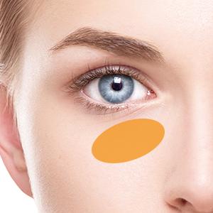 下眼瞼脱脂の症例写真