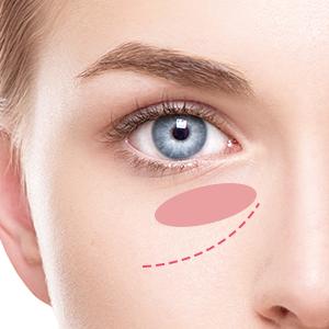 下眼瞼脱脂(ハムラ法)
