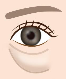 目の下のふくらみイメージ
