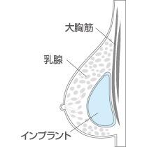 豊胸 乳腺下法