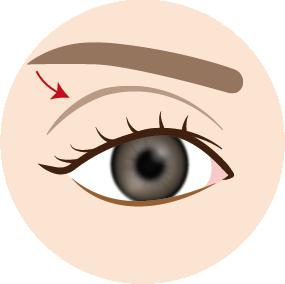 目の上の凹み