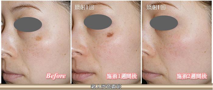 老人性色素斑の症例写真
