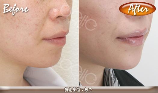 あごの症例写真(シリコンプロテーゼ法)