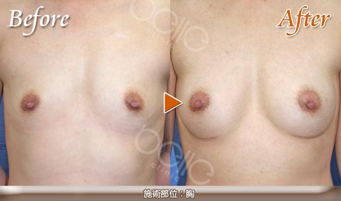 豊胸の症例写真(シリコンバッグ挿入 2カップUP)