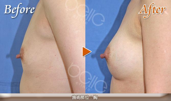 豊胸の症例写真(シリコンバッグ挿入 3カップUP)