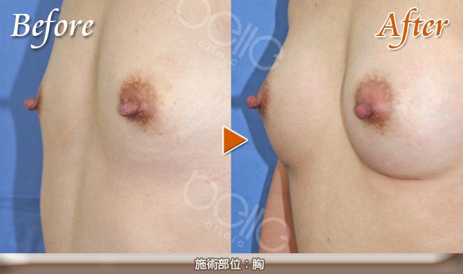 豊胸の症例写真(シリコンバッグ挿入)