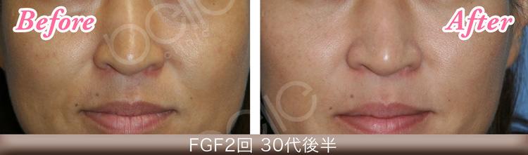 FGF注入の症例写真(ほうれい線)