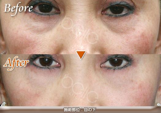 FGF注入の症例写真(目の下のしわ・くぼみ)