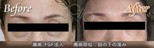 FGF注入の症例写真(目の下のくぼみ)