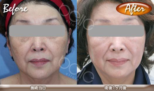 金の糸美容術®の症例写真(若返り・美白対策)