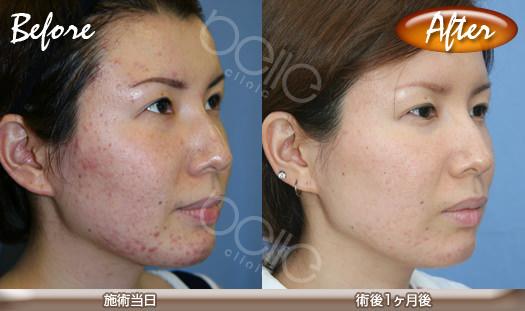 金の糸美容術®の症例写真(ニキビ改善)