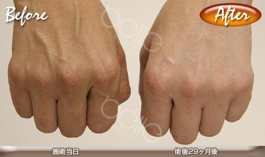 金の糸美容術®の症例写真(手の老化防止・美白対策)
