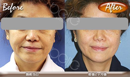 金の糸美容術®の症例写真(若返り・たるみ改善)