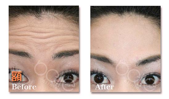 額のしわの症例写真(ボトックス注射による改善)