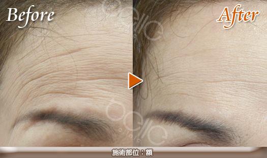 額のしわの症例写真(FGF注入)