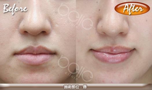 ほうれい線の症例写真(FGF注射による改善)