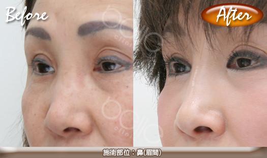 ヒアルロン酸注射(鼻(眉間))