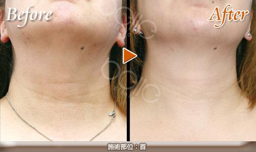 首のしわの症例写真(FGF注入による改善)