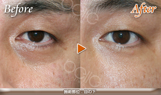 目の下のくぼみ(ふくらみ)の症例写真(FGF注入)