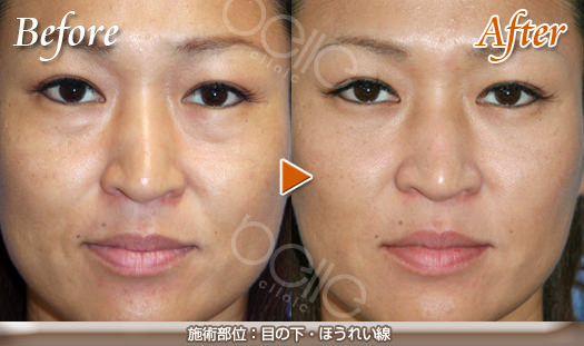 目の下のくぼみ(ふくらみ)の症例写真