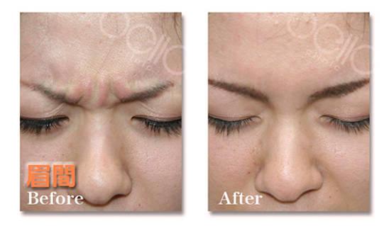 眉間のしわの症例写真(ボトックス注射・額)