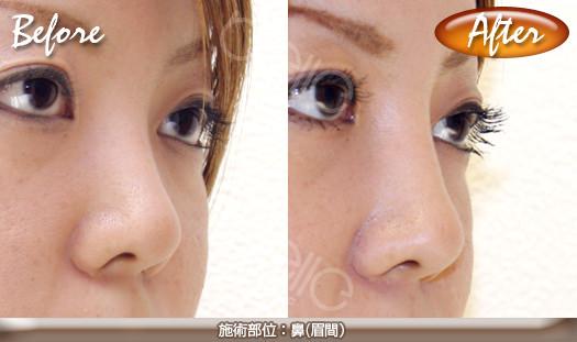 隆鼻術の症例写真(ヒアルロン酸注射)