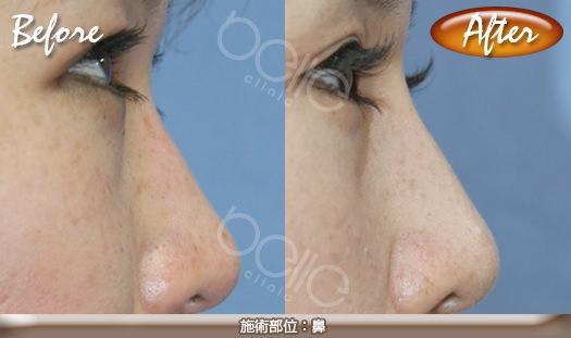 隆鼻術の症例写真
