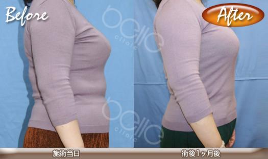 liposuctionBA02