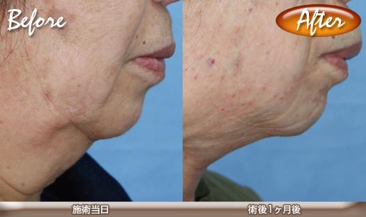 シルエットリフトの症例写真(頬のたるみ・あご下・ほうれい線の改善)