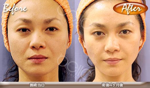 小顔・エラの症例写真(金の糸美容術)