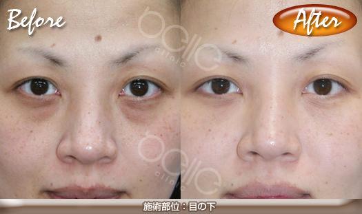 パルスリポレーザーの症例写真(目の下の脂肪改善)