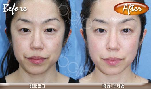 パルスリポレーザーの症例写真(頬の引き締め・小顔)