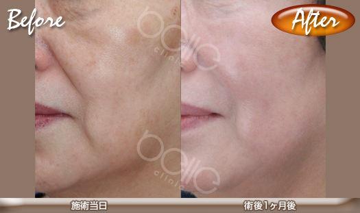 パルスリポレーザーの症例写真(頬のたるみ改善、肉付き改善)
