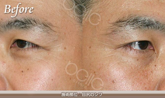 目尻のしわの症例写真(FGF注入による改善・30代 男性)