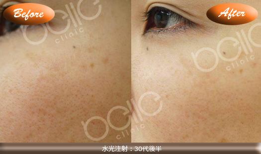 水光注射の症例写真(シミ・美白対策)