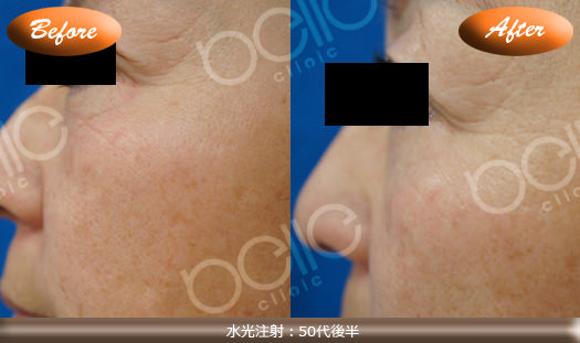 水光注射の症例写真(目尻のしわ・乾燥肌・毛穴改善)