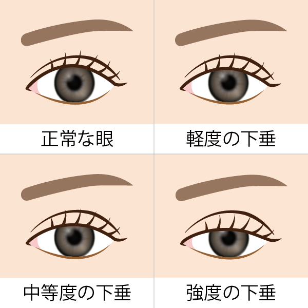 眼瞼下垂の程度