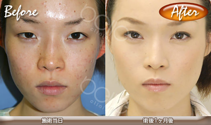 eye-hutae-before-after03