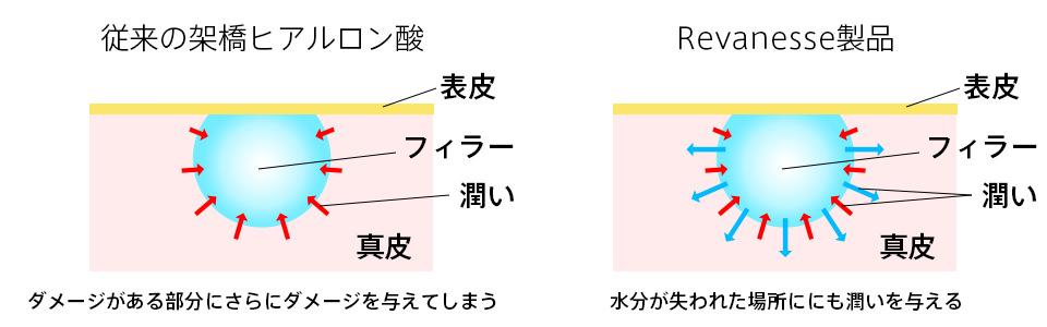 Revanesse(リバネッセ)ヒアルロン酸比較
