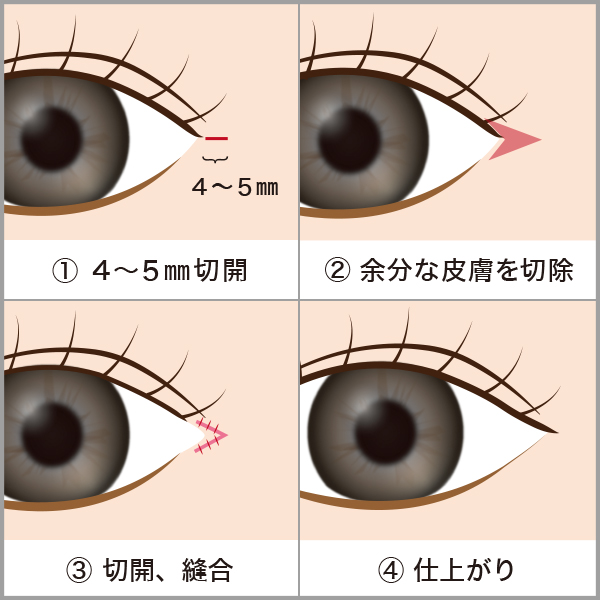 目尻切開の施術方法