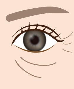 目の下のシワイメージ