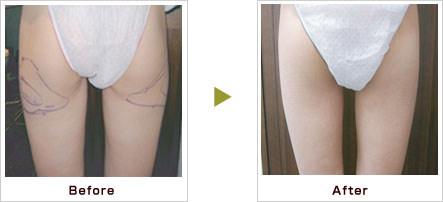 脂肪溶解注射 症例写真