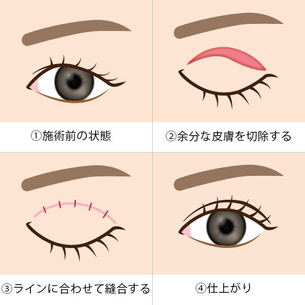 上眼瞼たるみ取りの施術方法